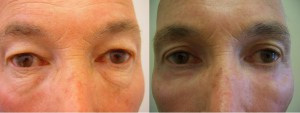 eyes-before-after-photo-10-251