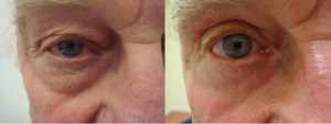 eyes-before-after-photo-13-238-