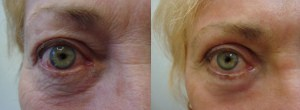 eyes-before-after-photo-15-300