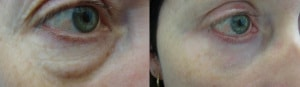 eyes-before-after-photo-16-320