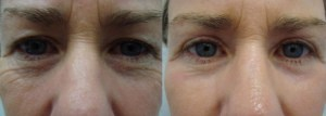 eyes-before-after-photo-17-209-1