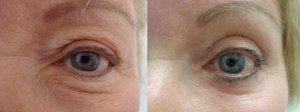 eyes-before-after-photo-2-208-2