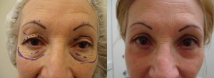eyes-before-after-photo-22-190-2