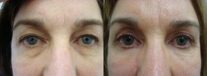 eyes-before-after-photo-25-289-1
