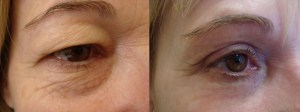 eyes-before-after-photo-3-225