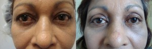 eyes-before-after-photo-32-267