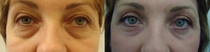 eyes-before-after-photo-34-250