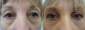 eyes-before-after-photo-35-275