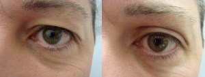 eyes-before-after-photo-37-283-2