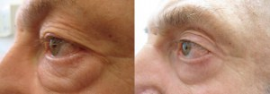 eyes-before-after-photo-39-287-3