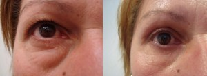 eyes-before-after-photo-4-254