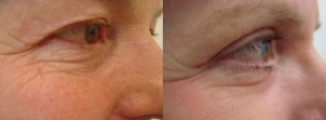 eyes-before-after-photo-5-255-1