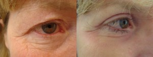 eyes-before-after-photo-7-255-6