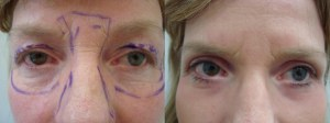 eyes-before-after-photo-8-255-7