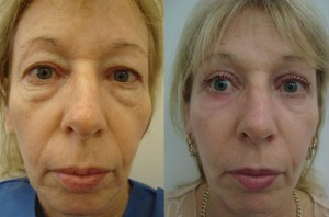 cosmetic-sugery-before-after-photo-15-223