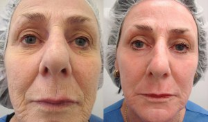 cosmetic-sugery-before-after-photo-182-4-1
