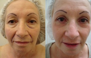 cosmetic-sugery-before-after-photo-19-190
