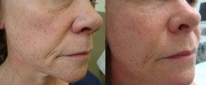 fat-transfer-before-after-photo-446-3