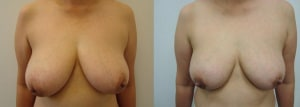 breast-reduction-before-after-470-1