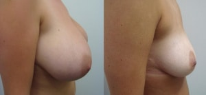 breast-reduction-before-after-photo-12-177-2