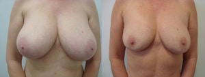 breast-reduction-before-after-photo-5-291