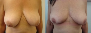 breast-reduction-before-after-photo-6-279