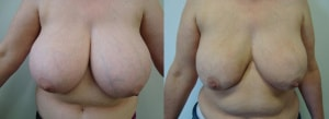 breast-reduction-before-after-photo-7-200
