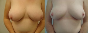 breast-reduction-before-after-photo-8-324