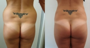 1_liposculpture-before-after-photo-391-1