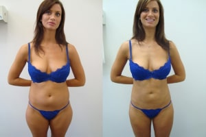 liposuction-before-after-1-235-4