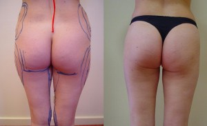 liposuction-before-after-12-299