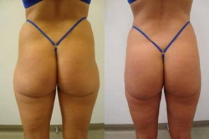 liposuction-before-after-3-235-2-copy