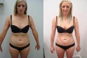liposuction-before-after-6-234-1