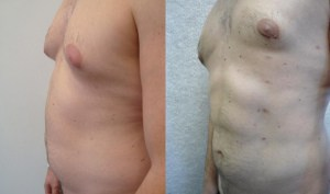 hi-def-before-after-photo-1-329-2