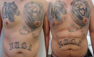 hi-def-before-after-photo-371-2