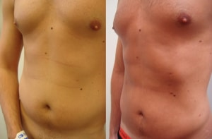 lipo-hi-def-before-after-photo-413-5