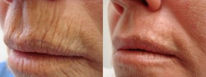 cosmetic-sugery-before-after-photo-7-284-2