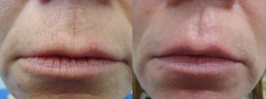 laser-resurfacing-before-after-photo-15-171