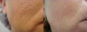 laser-resurfacing-before-after-photo-16-171-2