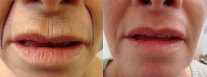 laser-resurfacing-before-after-photo-17-190-1