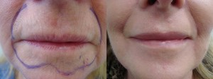 laser-resurfacing-before-after-photo-20-255-5