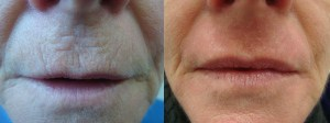 laser-resurfacing-before-after-photo-21-303