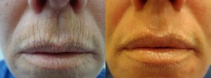 laser-resurfacing-before-after-photo-22-284