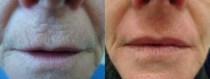 laser-resurfacing-before-after-photo-23-303