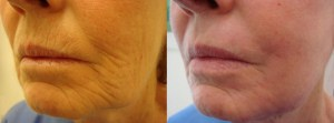 laser-resurfacing-before-after-photo-25-290-2