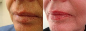 laser-resurfacing-before-after-photo-28-307-3