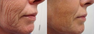 laser-resurfacing-before-after-photo-31-209-3