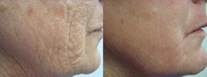 laser-resurfacing-before-after-photo-32-204