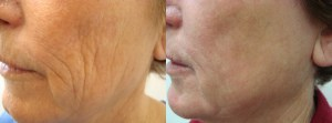 laser-resurfacing-before-after-photo-33-240-2