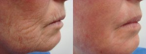 laser-resurfacing-before-after-photo-34-290-1